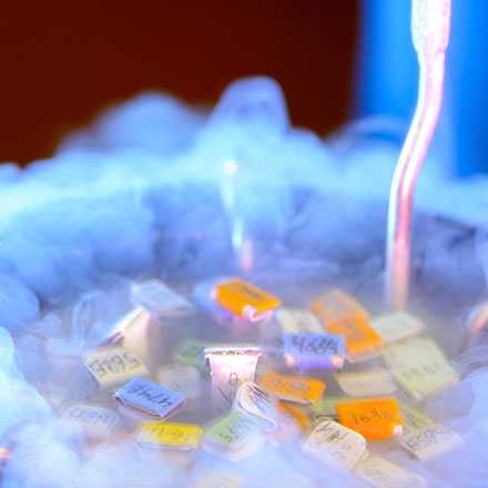 Kinderwunsch Eizellspende Tiefgefrorene Eizellen